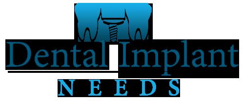 Dental Implant Needs